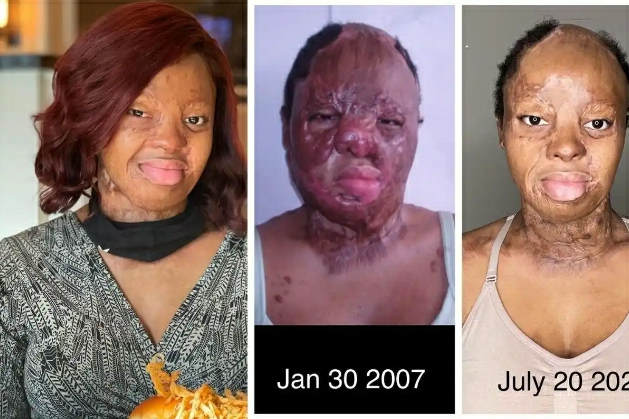14 Years After, Plane Crash Survivor Kechi Okwuchi Shares Her Recovery Journey (Photos)
